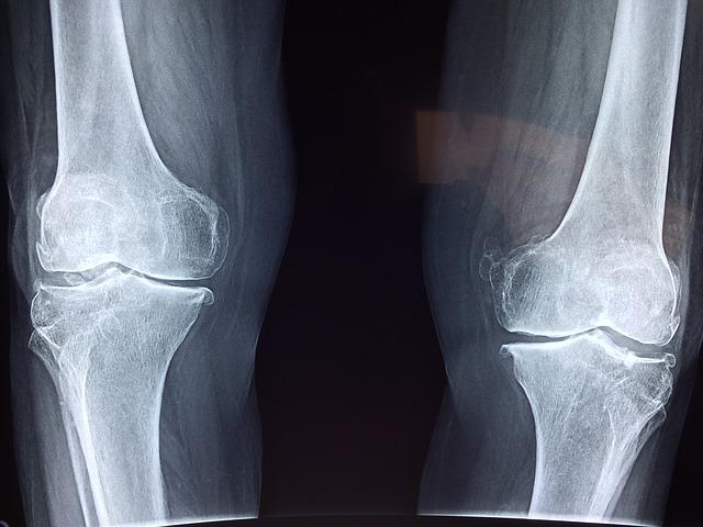 Cómo curar la inflamación de rodillas