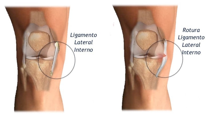 ligamento lateral interno