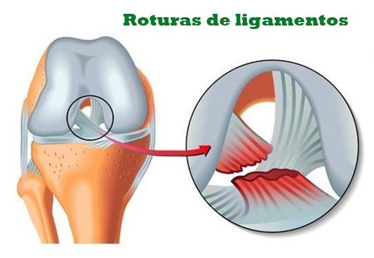 roturas de ligamentos