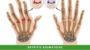 ¿Artritis reumatoide? Sintomatología, Diagnóstico, Tratamiento y Prevención