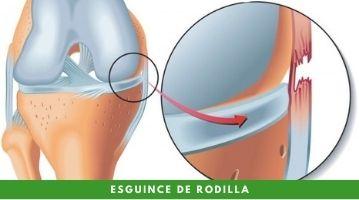 Esguince de rodilla, la lesión del deportista